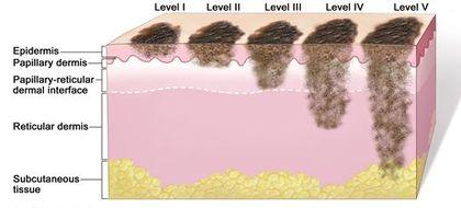 melanoma levels