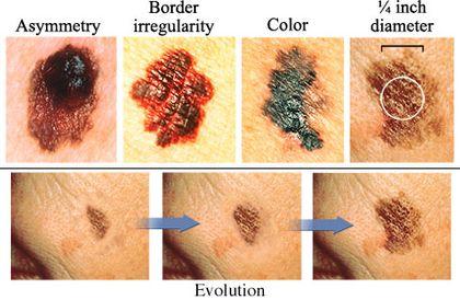 melanoma ABCDE